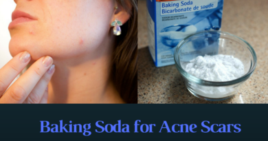 Baking Soda for Acne Scars